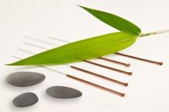 Akupunkturnadeln.jpg
